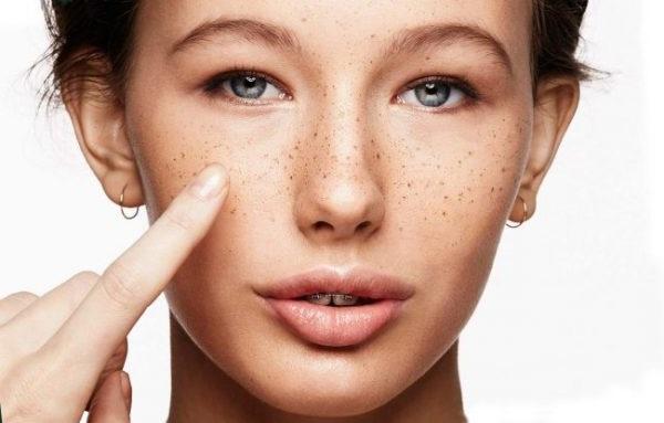 як вивести пігментні плями на обличчі