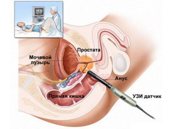 Як проводиться діагностика захворювання