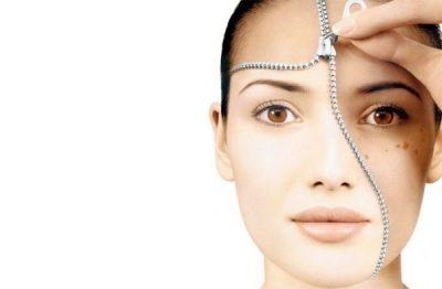 Чому виникають пігментні плями на обличчі
