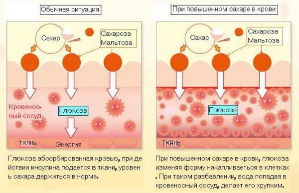 Підвищений цукор у крові