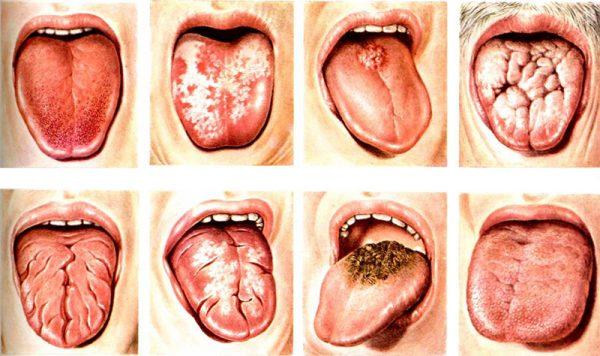 потріскався язик лікування