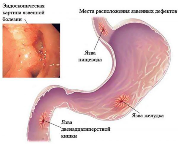 Виразка шлунку