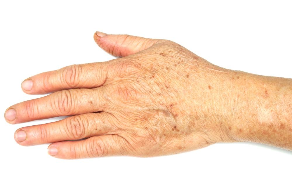 коричневі плями на руках