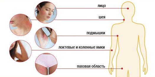 Де може проявлятися дерматит