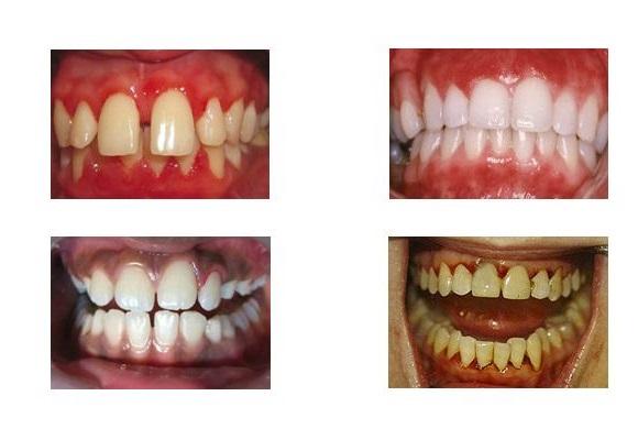 Форми гінгівіту на зубах