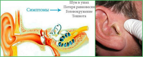 Симптоми отиту середнього вуха