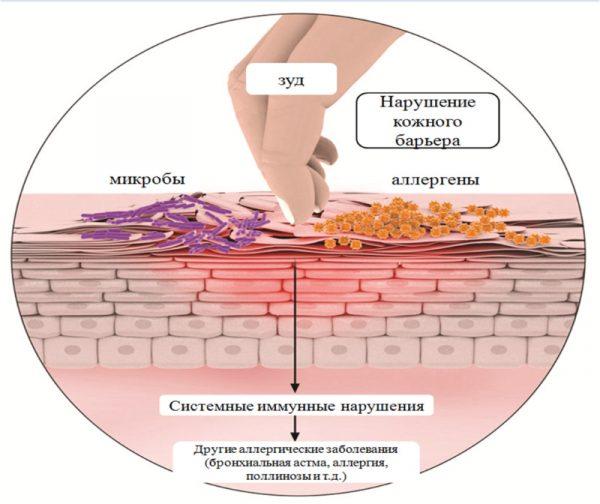 Що таке дерматит