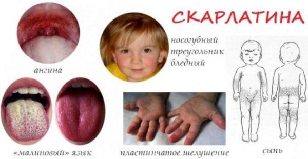 Як виявляє себе захворювання