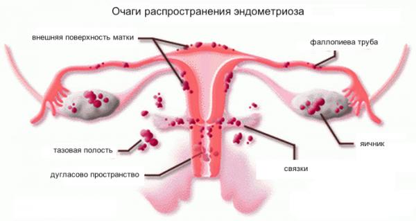 ендометріоз симптоми