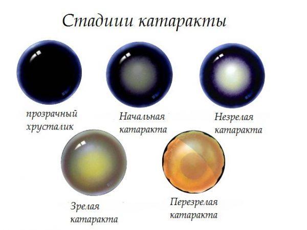 стадії катаракти очей