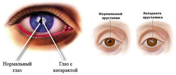 катаракта очей