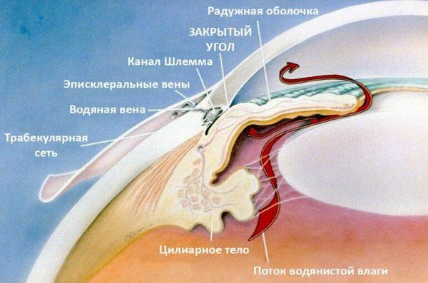 що таке глаукома