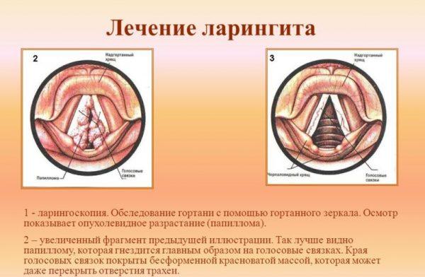 Лікування ларингіту у дорослих