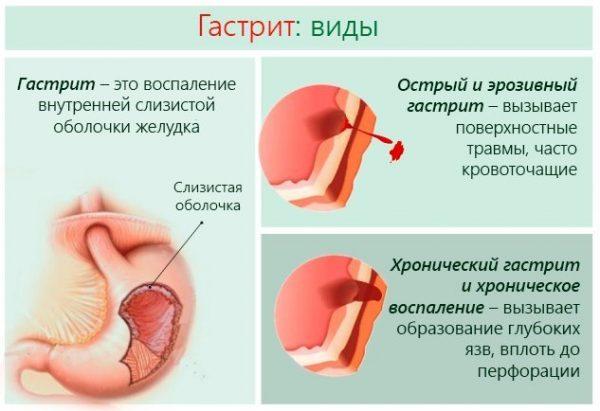види гастриту шлунка