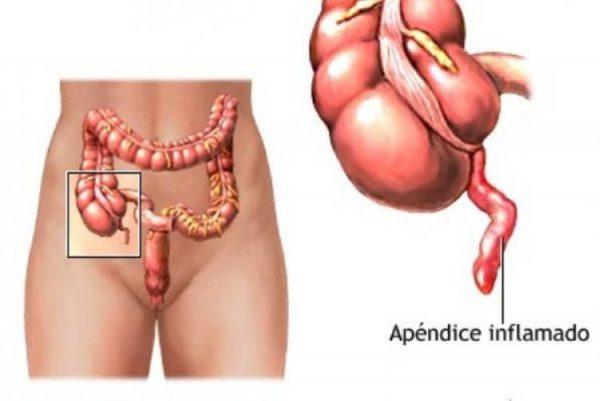 симптоми апендициту
