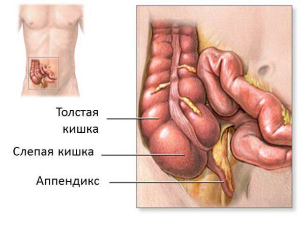 признаки апендициту у жінок