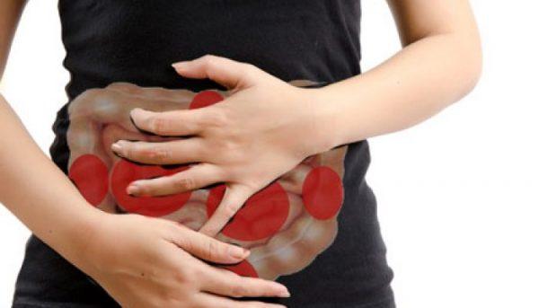 синдром роздратованого кишечника