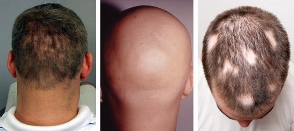випадає волосся у чоловіків
