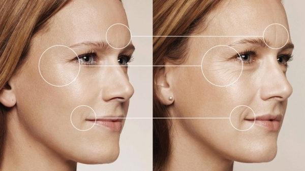 біоревіталізація обличчя це