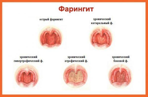 фарингіт симптоми