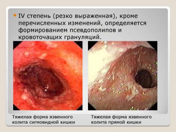 хронічний коліт кишечника