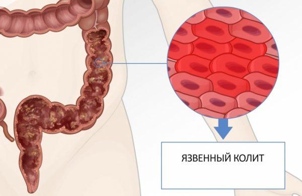 коліт кишечника лікування