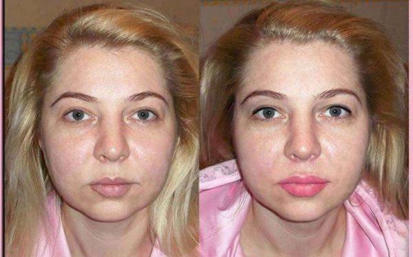 татуаж губ фото до і після