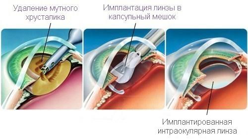 лікування катаракти очей