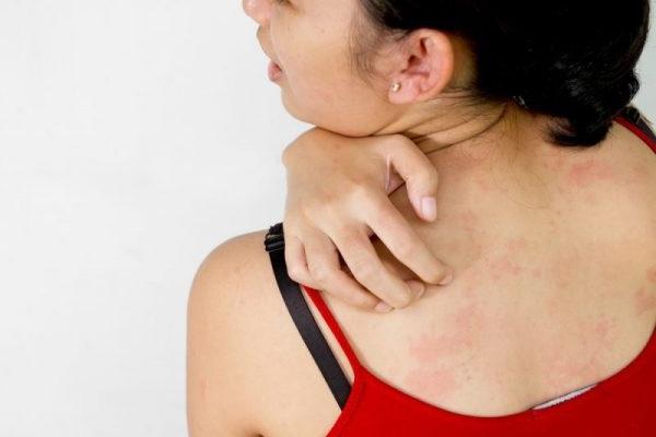 червоні плями на тілі сверблять