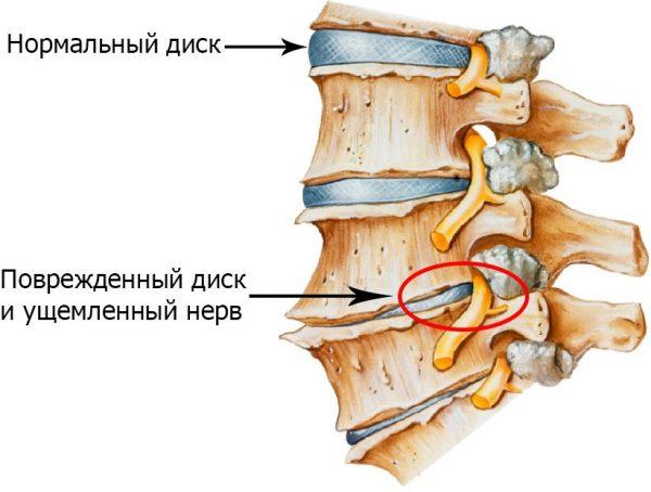 Остеохондроз шийного відділу хребта фото