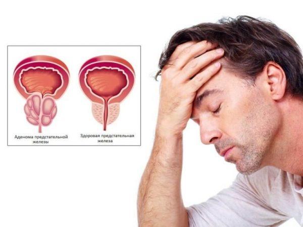 гарднерелла у чоловіків симптоми