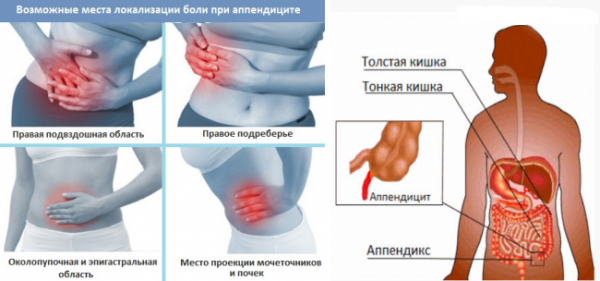признаки апендициту