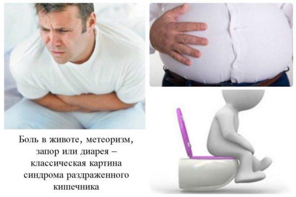 симптоми подразненого кишечника
