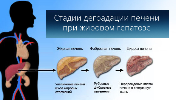 Стадії деградації печінки