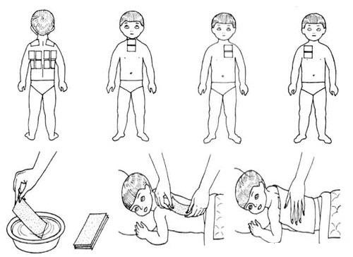 компреси при бронхіті у дітей