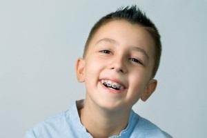 Як вирівняти зуби дитині брекетами