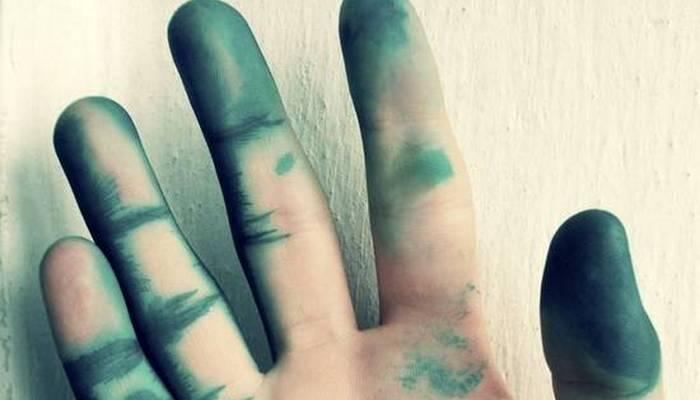 чим відмити зеленку з тіла