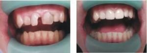 пластинки на зуби для дорослих