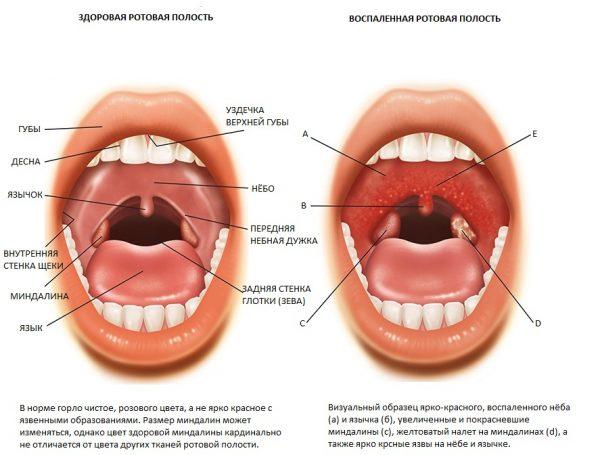 хронічний тонзиліт симптоми