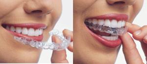 пластини для вирівнювання зубів