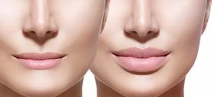 Як зробити губи пухкими в домашніх умовах