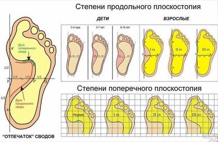 стадії плоскостопії