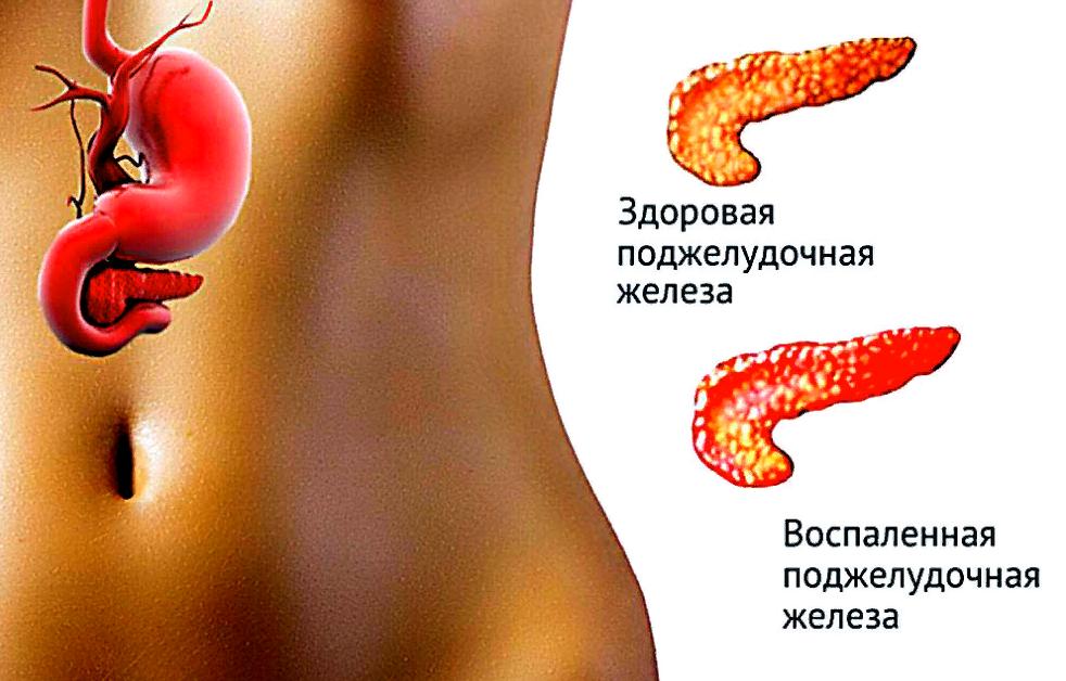 симптоми хворої підшлункової