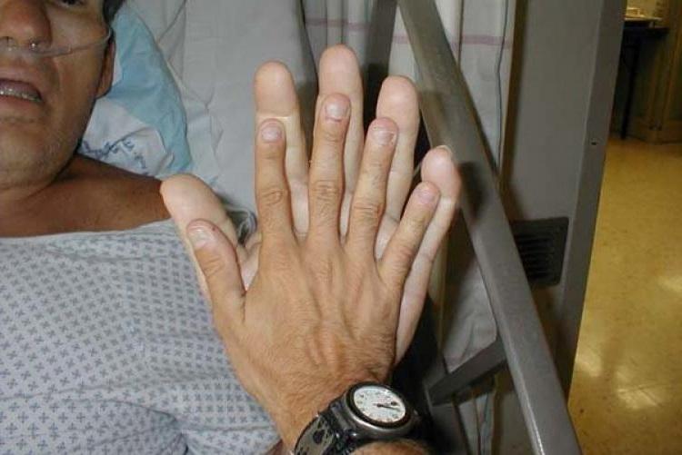 акромегалія симптоми