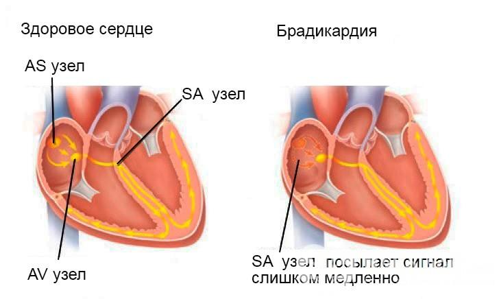брадикардія серця