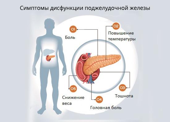 підшлункова залоза симптоми