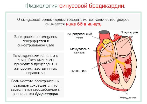 синусова брадикардія