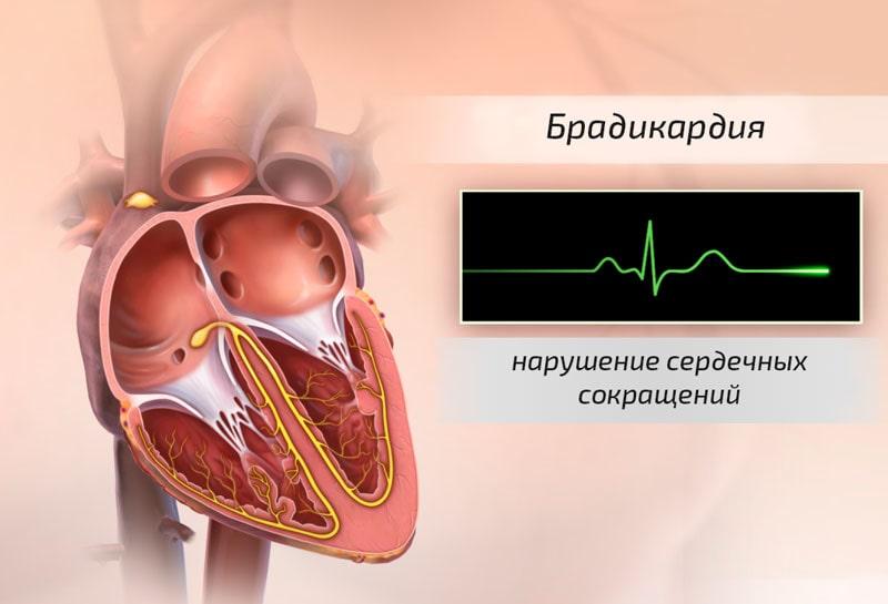 брадикардія серця причини винекнення