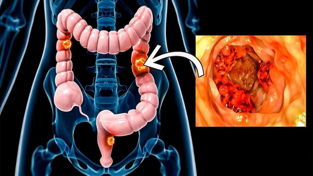Рак товстої кишки – симптоми перші ознаки, стадії онкологічного ...