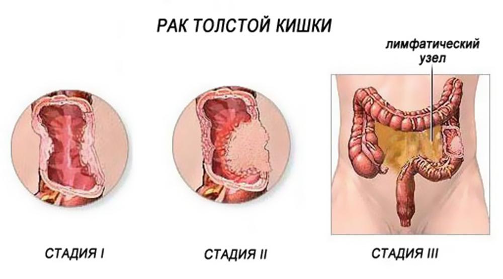 пухлина кишечника симптоми